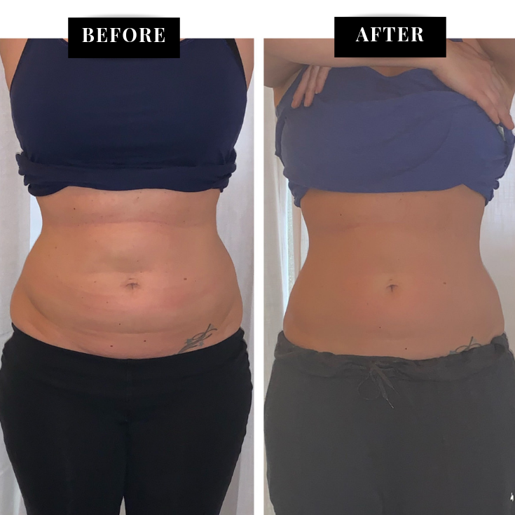 before and after cryosculpt results