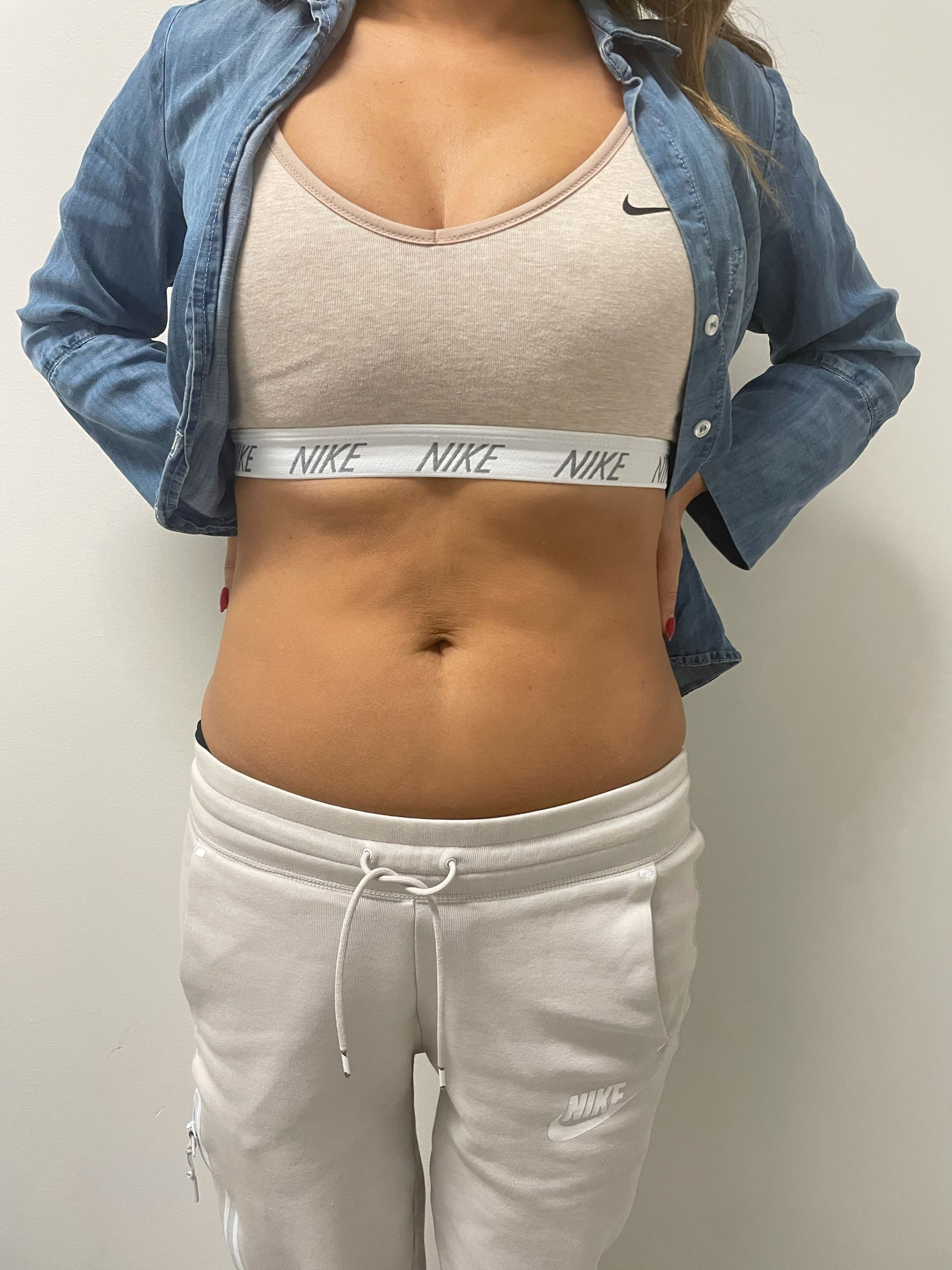 my experience with CoolSculpting, CoolToning review, CoolSculpting Treatment, CoolToning Treatment, CoolSculpting review, CoolToning review, CoolSculpting before and after, CoolToning before and after, treatments for unwanted belly fat, wellness, beauty blogger, real results of beauty treatments, how to get rid of stubborn fat, how to get rid of fat without surgery, Jen Worman, Red Soles and Red Wine