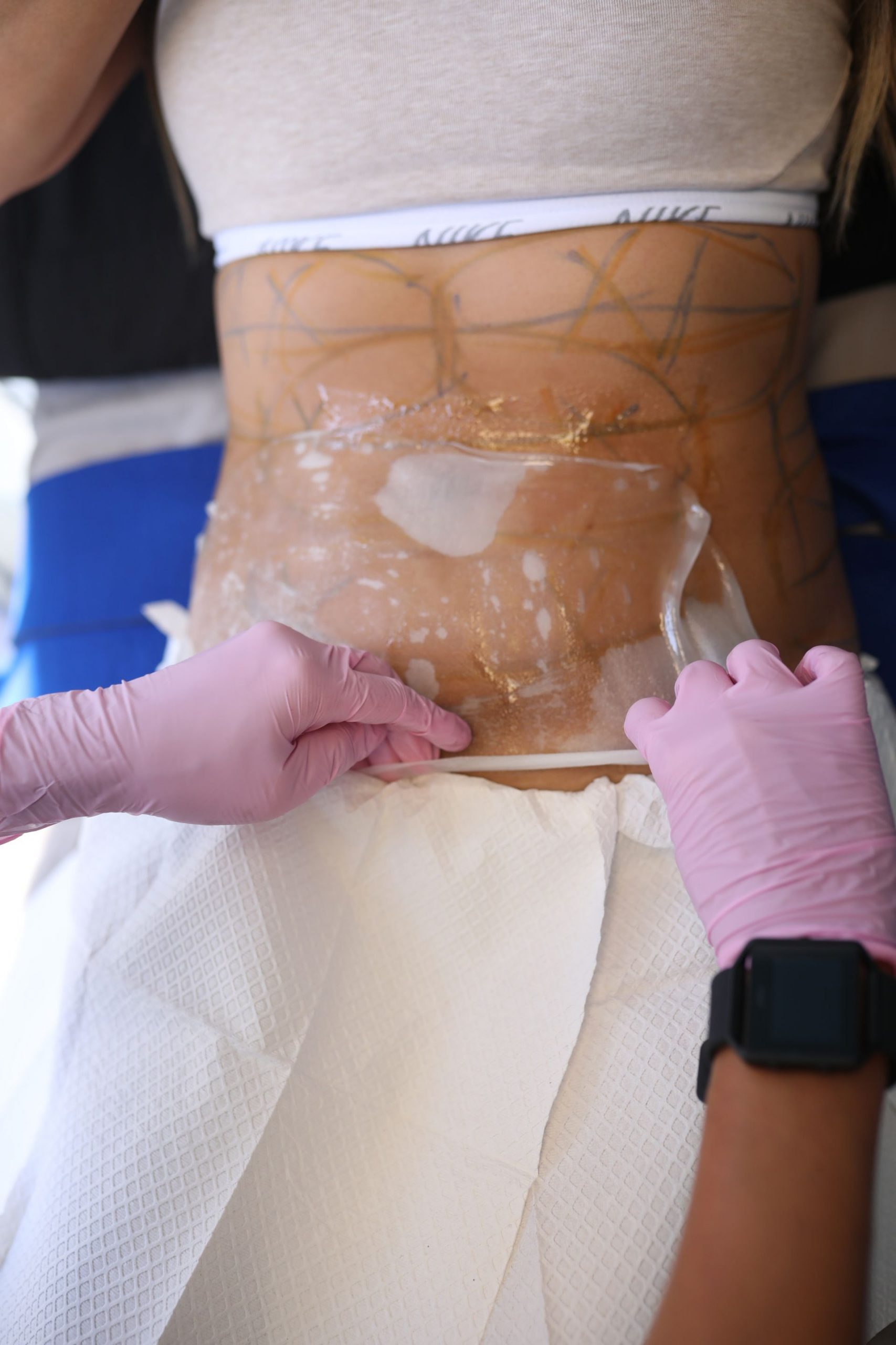 how to get rid of unwanted fat without surgery, CoolSculpting, CoolToning, my experience with CoolSculpting, CoolToning review, CoolSculpting Treatment, CoolToning Treatment, CoolSculpting review, CoolToning review, CoolSculpting before and after, CoolToning before and after, treatments for unwanted belly fat, wellness, beauty blogger, behind the scenes of beauty treatments, CoolSculpting procedure, CoolToning procedure, how to get rid of stubborn fat, Jen Worman, Red Soles and Red Wine